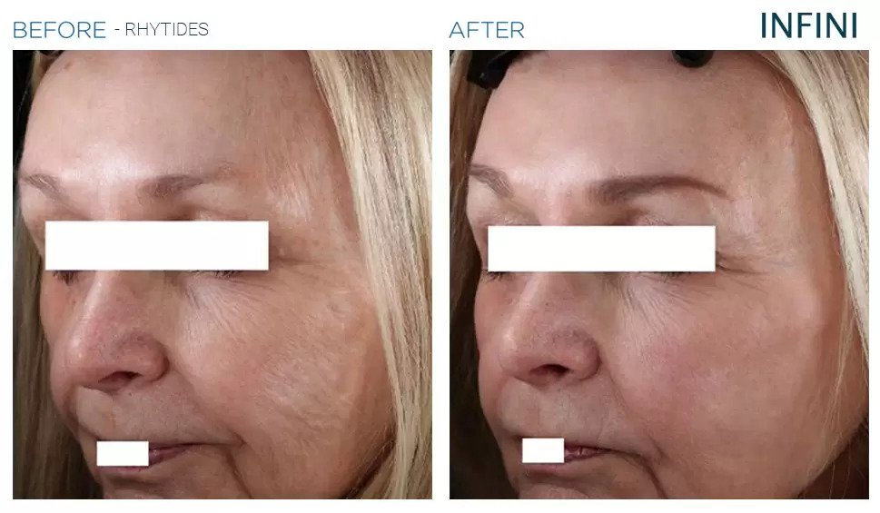 Infini before and after photo #11