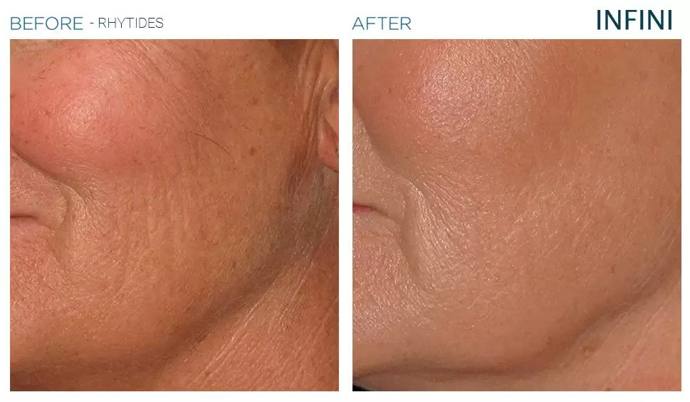 Infini before and after photo #12