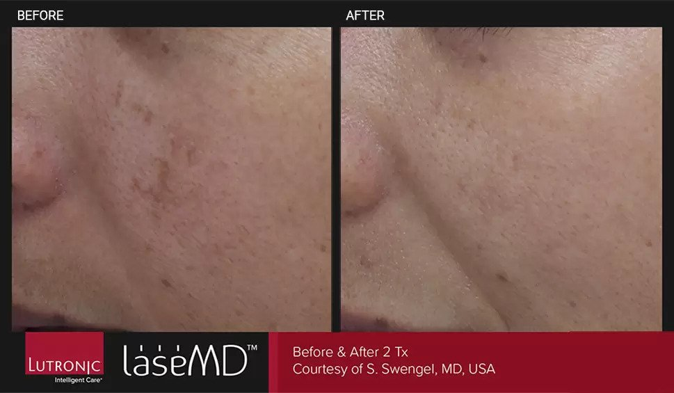LaseMD before and after photo #1