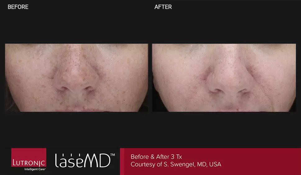 LaseMD before and after photo #2