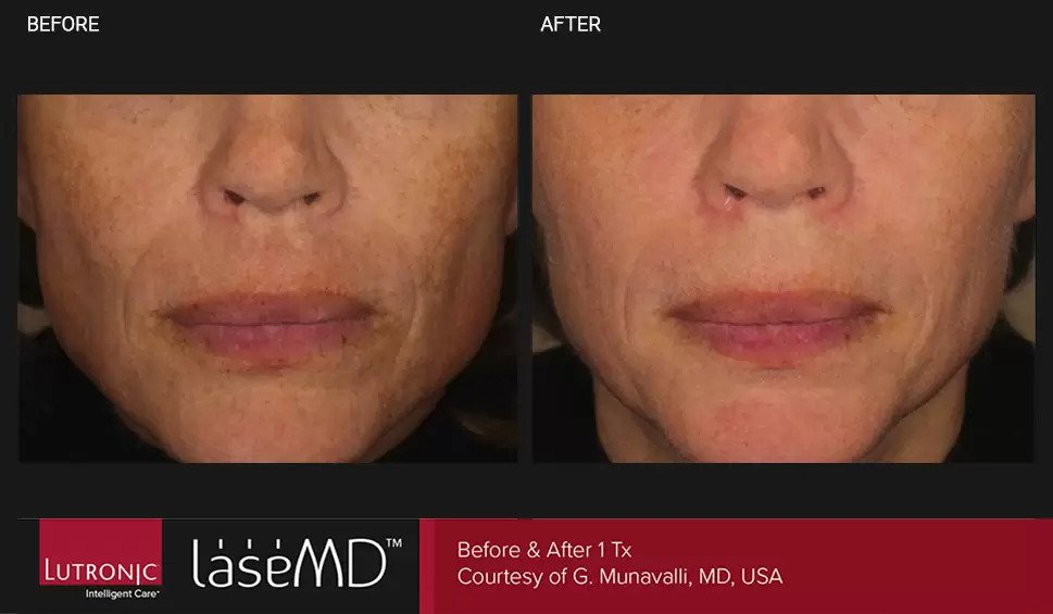 LaseMD before and after photo #3