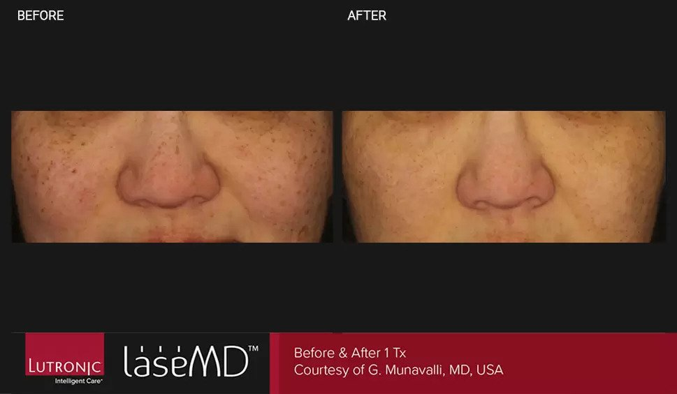 LaseMD before and after photo #5