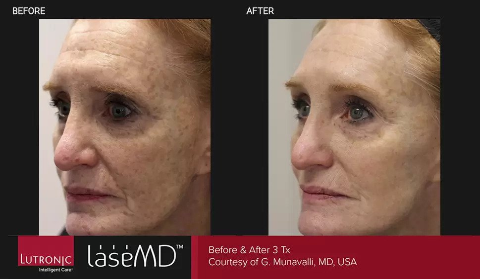 LaseMD before and after photo #6