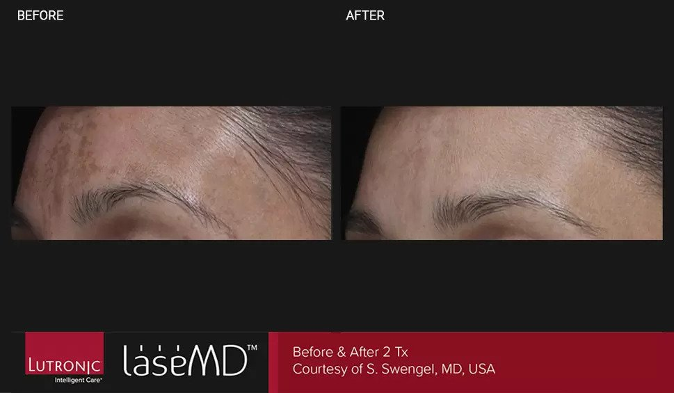 LaseMD before and after photo #7
