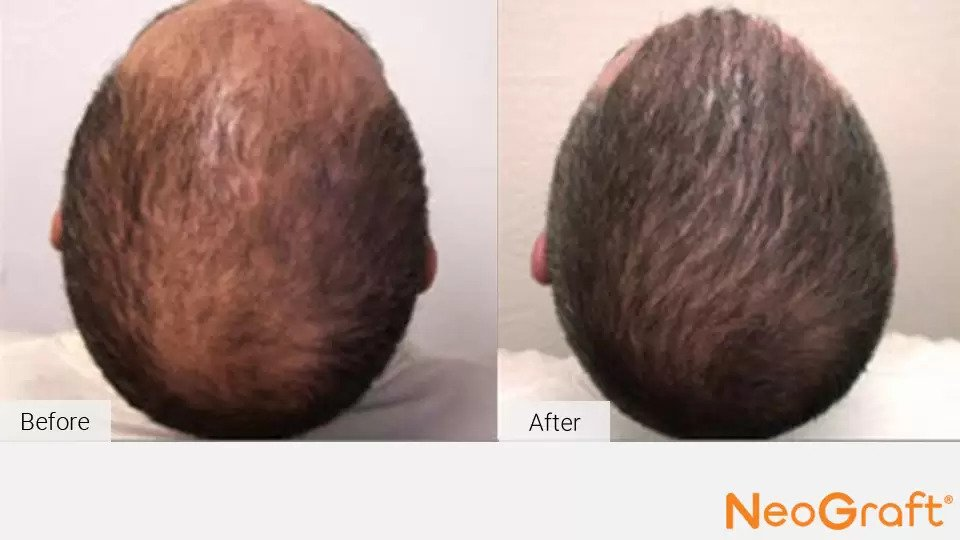 NeoGraft before and after photo #1