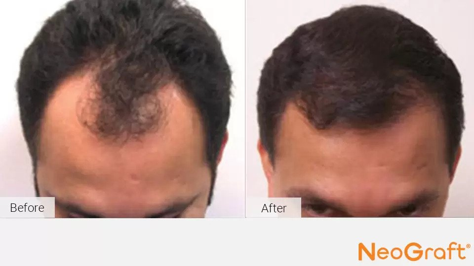 NeoGraft before and after photo #2