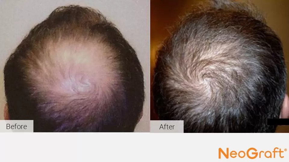 NeoGraft before and after photo #3