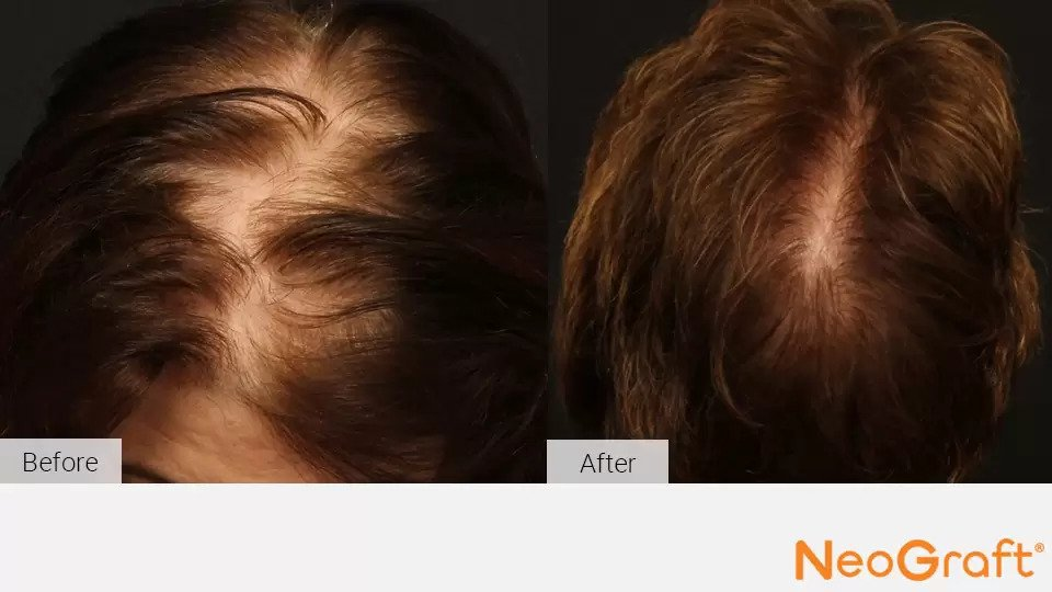 NeoGraft before and after photo #4