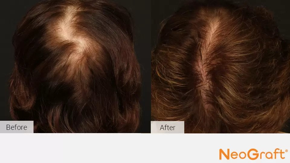 NeoGraft before and after photo #5