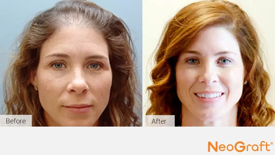 NeoGraft before and after photo #6