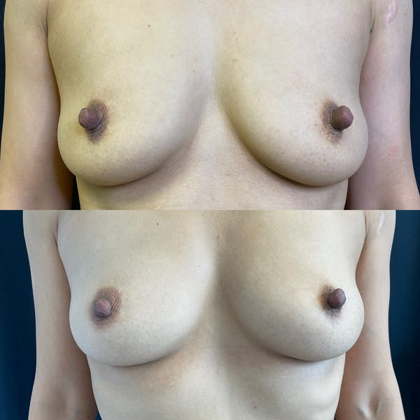 Fat Transfer Breast Augmentation Gallery - Patient 42746054 - Image 1