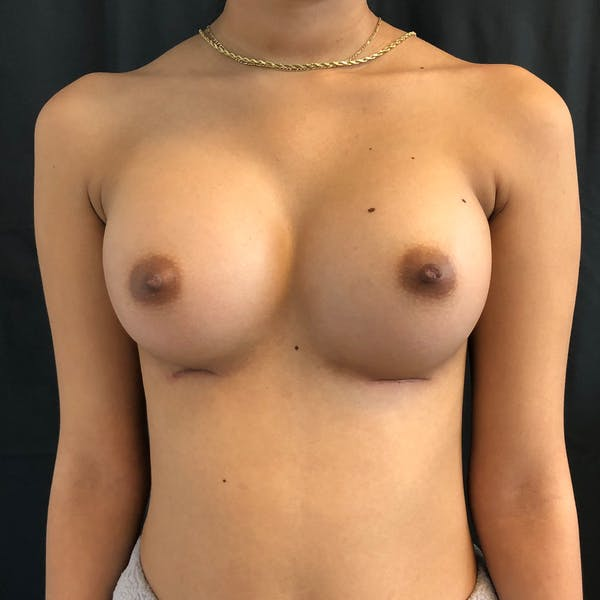 Breast Augmentation Gallery - Patient 42746136 - Image 2