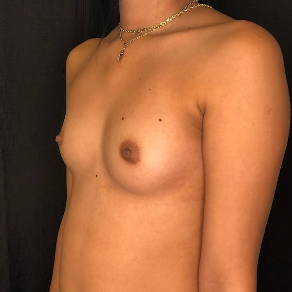 Breast Augmentation Gallery - Patient 42746136 - Image 3