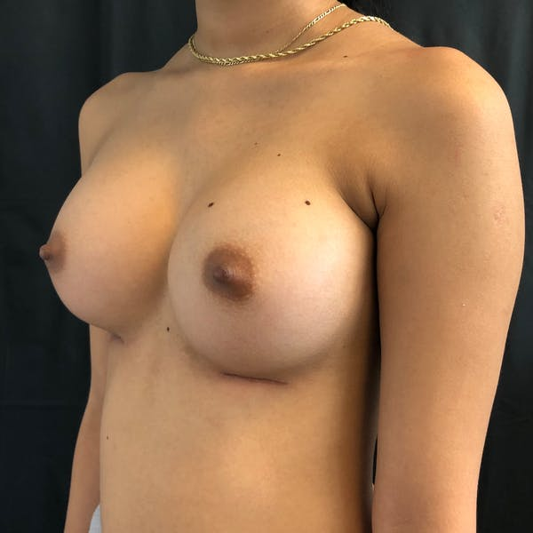 Breast Augmentation Gallery - Patient 42746136 - Image 4