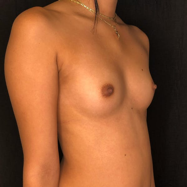 Breast Augmentation Gallery - Patient 42746136 - Image 5