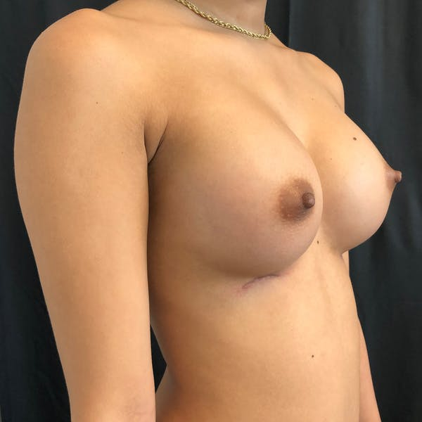 Breast Augmentation Gallery - Patient 42746136 - Image 6