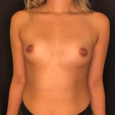 Breast Augmentation Gallery - Patient 42746185 - Image 1