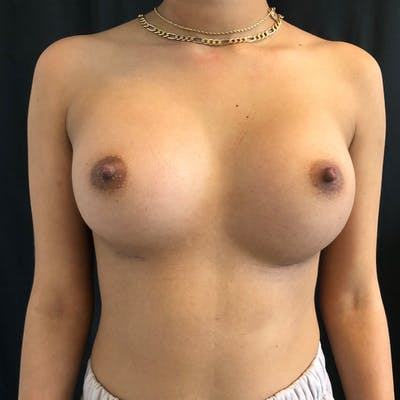 Breast Augmentation Gallery - Patient 42746185 - Image 2