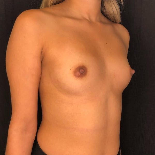 Breast Augmentation Gallery - Patient 42746185 - Image 3