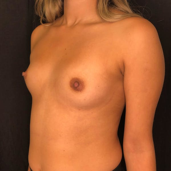 Breast Augmentation Gallery - Patient 42746185 - Image 5