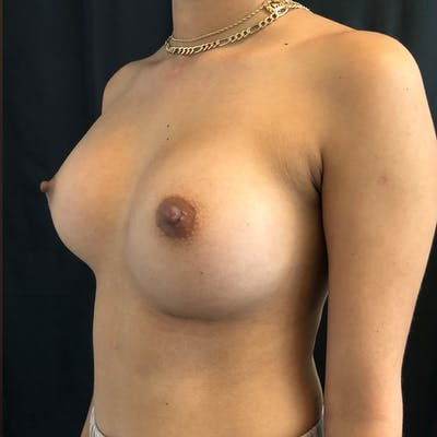 Breast Augmentation Gallery - Patient 42746185 - Image 6