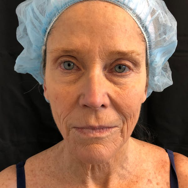 Facelift Gallery - Patient 42746279 - Image 1