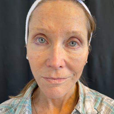 Facelift Gallery - Patient 42746279 - Image 2