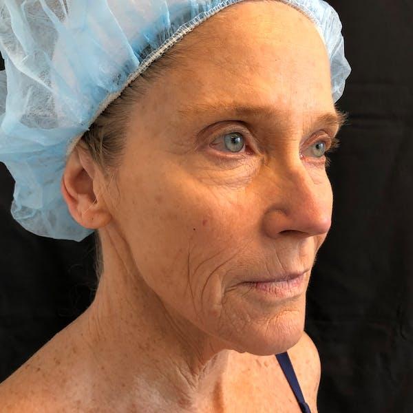 Facelift Gallery - Patient 42746279 - Image 3