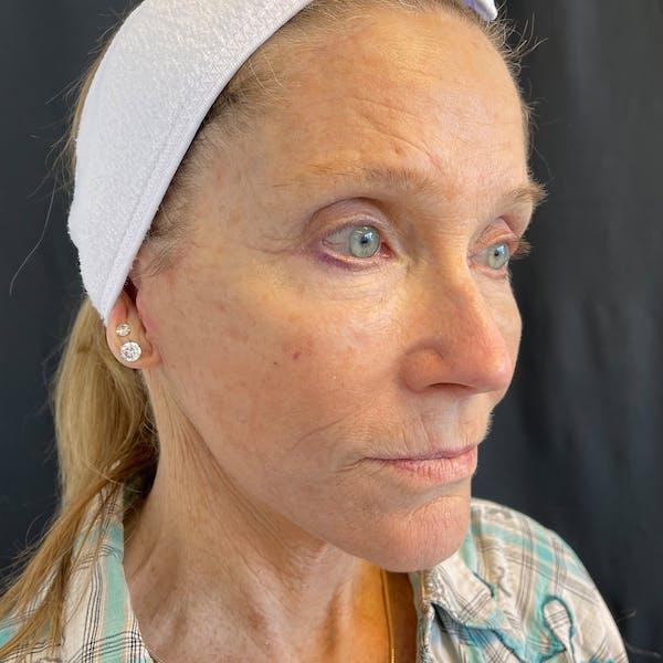 Facelift Gallery - Patient 42746279 - Image 4