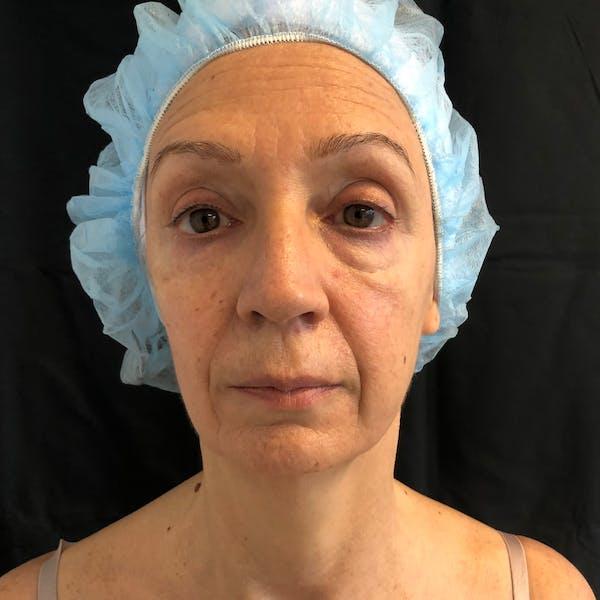 Facial Fat Transfer  Gallery - Patient 42746296 - Image 1