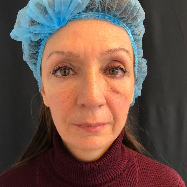 Facial Fat Transfer  Gallery - Patient 42746296 - Image 2