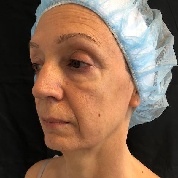 Facial Fat Transfer  Gallery - Patient 42746296 - Image 3