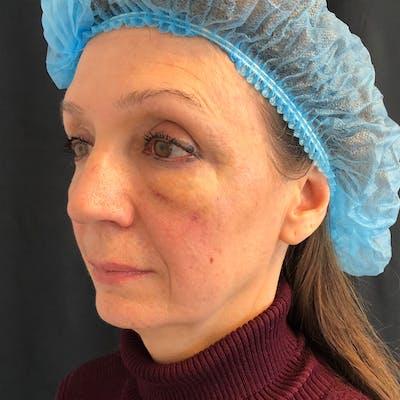 Facial Fat Transfer  Gallery - Patient 42746296 - Image 4
