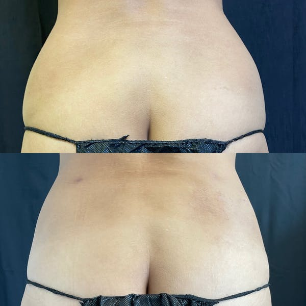 Mommy Makeover Gallery - Patient 42746312 - Image 3