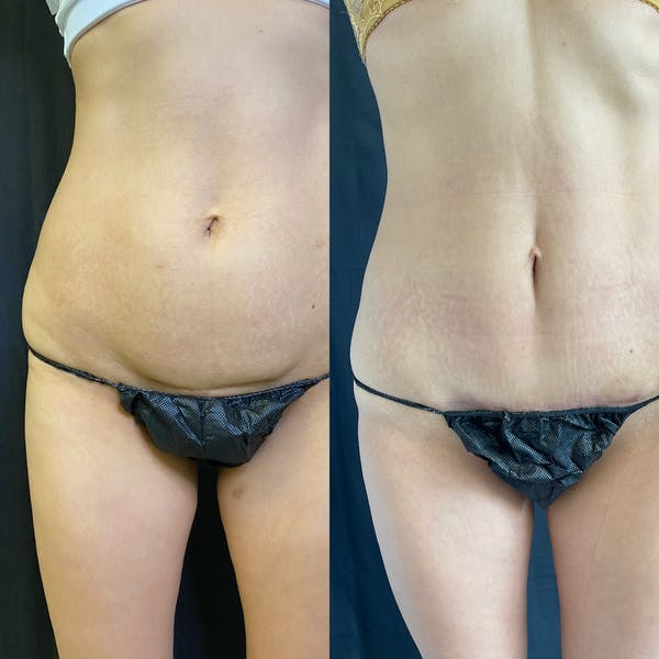 Mommy Makeover Gallery - Patient 42746312 - Image 6
