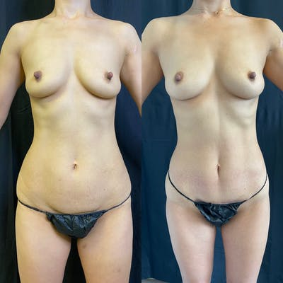 Liposuction Gallery - Patient 42746353 - Image 1