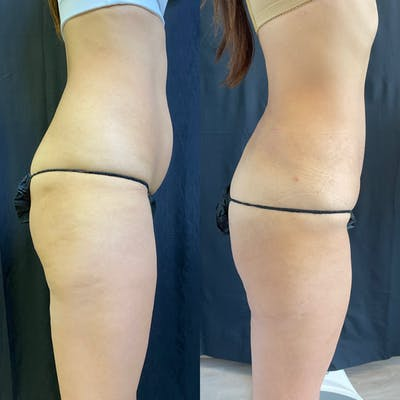 Liposuction Gallery - Patient 42746353 - Image 2