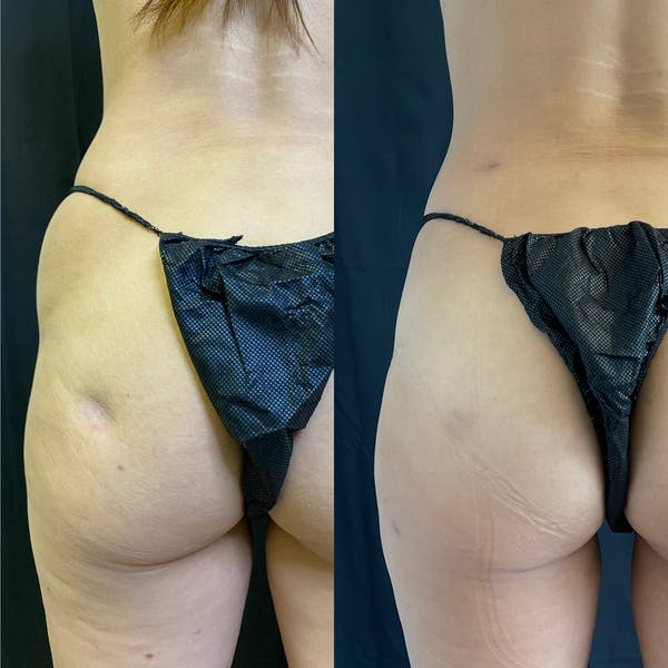 Liposuction Gallery - Patient 42746353 - Image 3