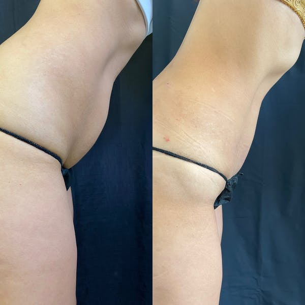Liposuction Gallery - Patient 42746353 - Image 4