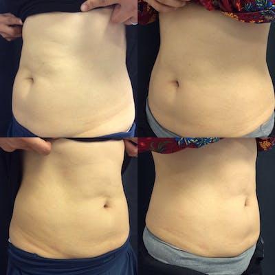 Vanquish Fat Reduction Gallery - Patient 42746601 - Image 1