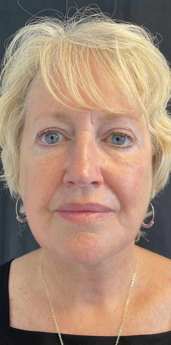 Facelift Gallery - Patient 50824372 - Image 2
