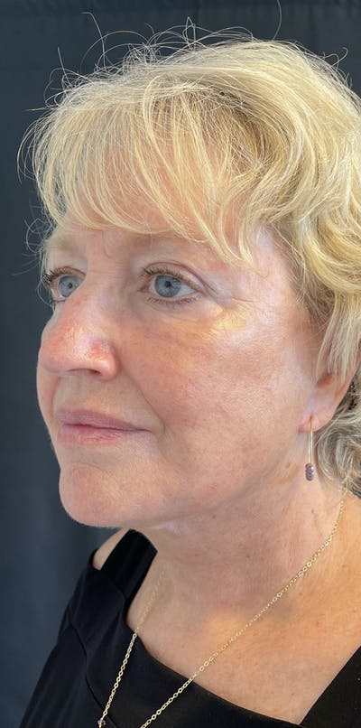 Facelift Gallery - Patient 50824372 - Image 4