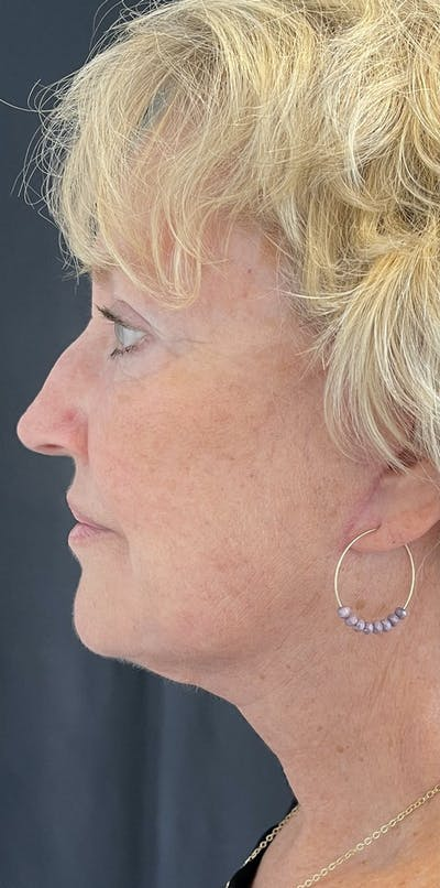 Facelift Gallery - Patient 50824372 - Image 6