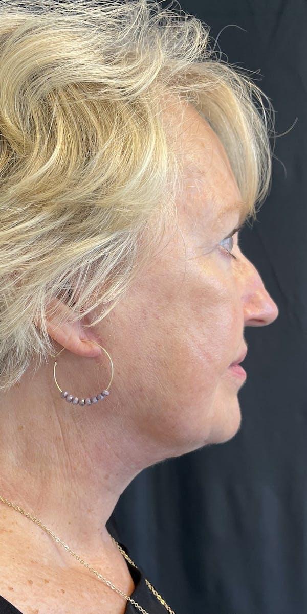Facelift Gallery - Patient 50824372 - Image 10