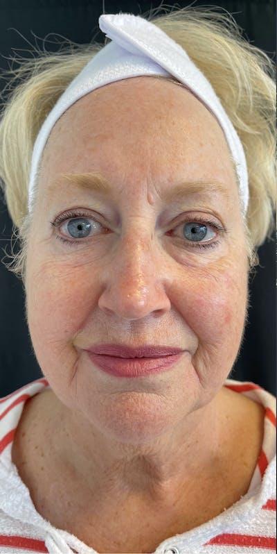 Facelift Gallery - Patient 50824372 - Image 1