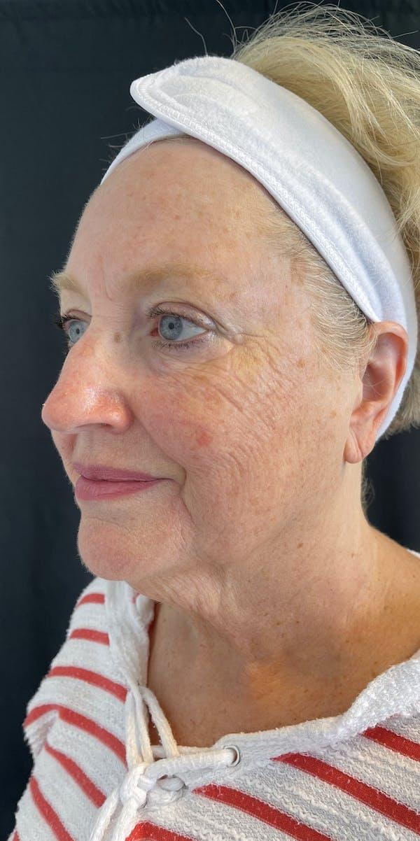 Facelift Gallery - Patient 50824372 - Image 3