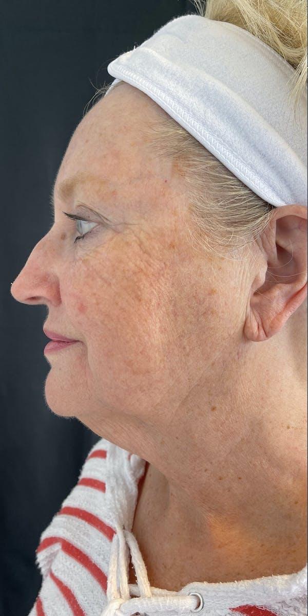 Facelift Gallery - Patient 50824372 - Image 5