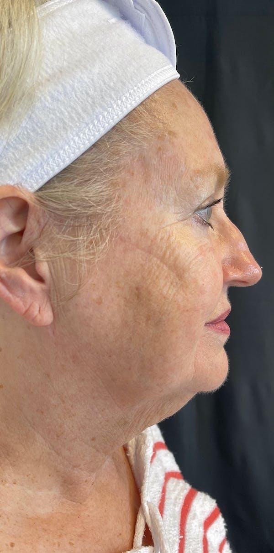 Facelift Gallery - Patient 50824372 - Image 9