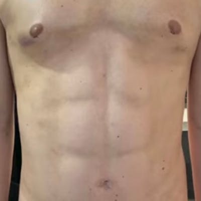 Liposuction Gallery - Patient 57582506 - Image 2