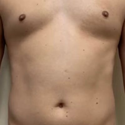 Liposuction Gallery - Patient 57582506 - Image 1